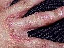 'Infecciones Mic�ticas'