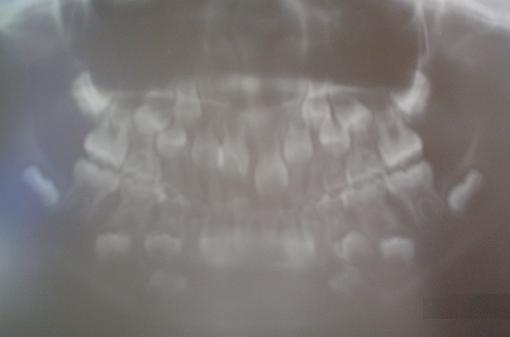 'Formación de las piezas dentarias'