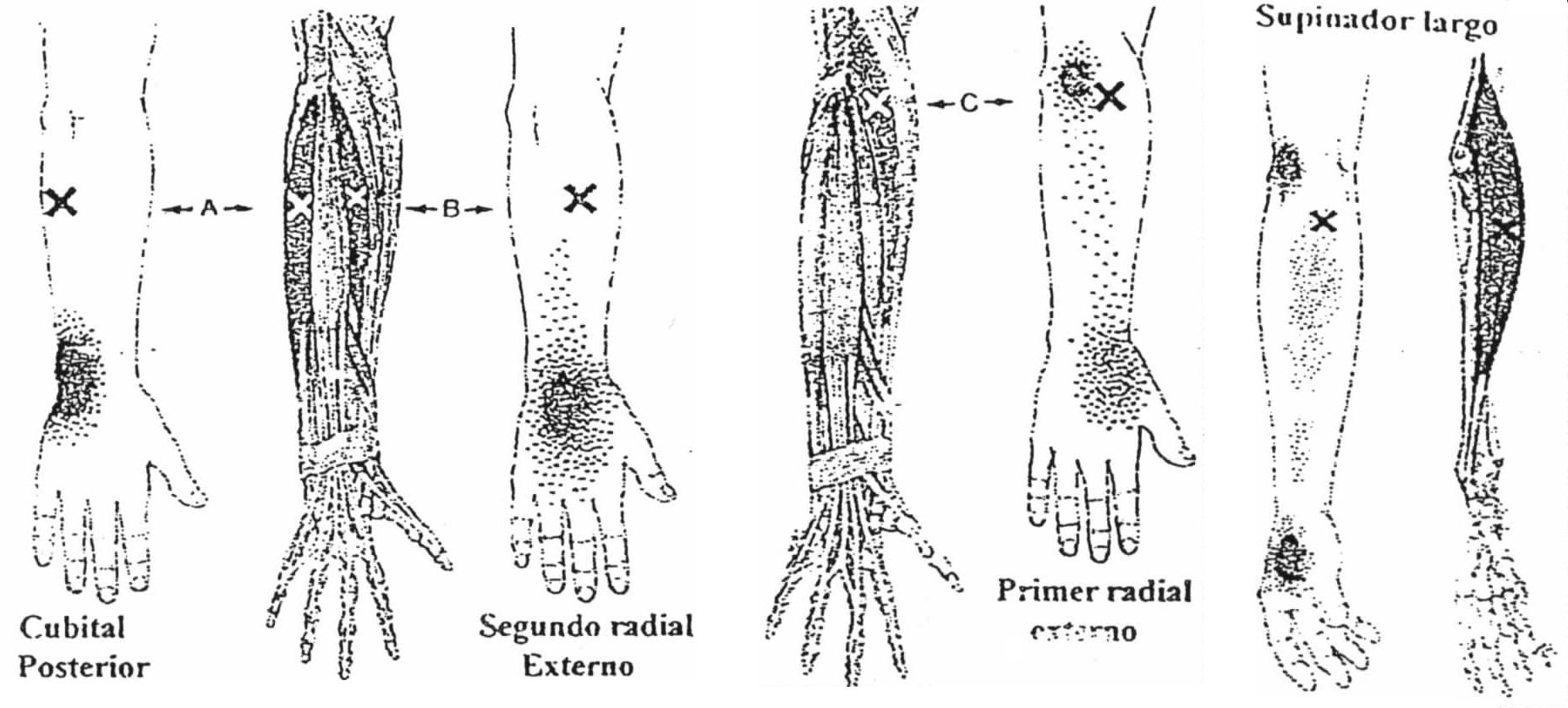 'Metodología fisioterapeútica'