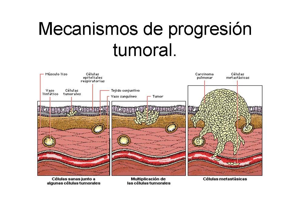 'Mecanismos de progresi�n tumoral'