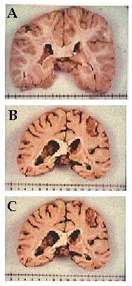 'Alzheimer'