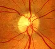 'Neuropatía óptica isquémica'