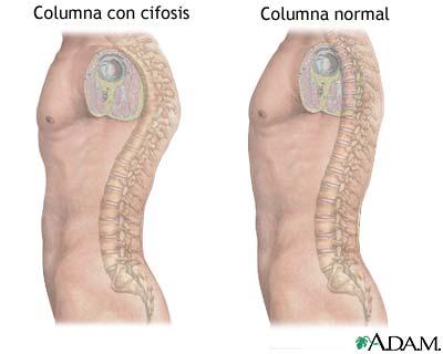 'Problemas posturales de la columna vertebral'