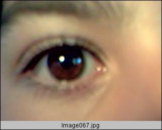 Disección de un ojo