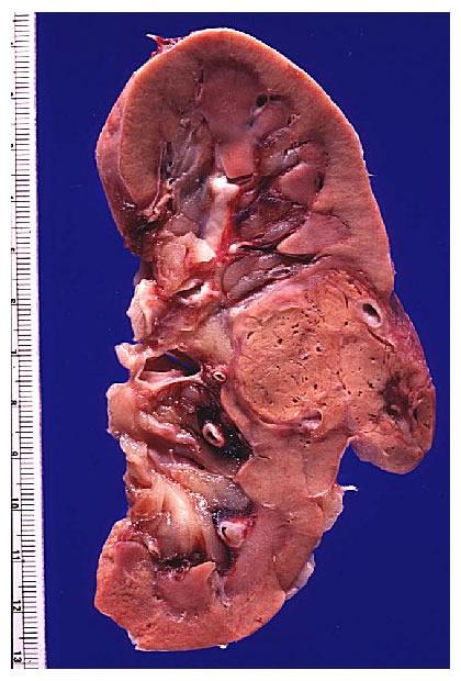 'Oncología'